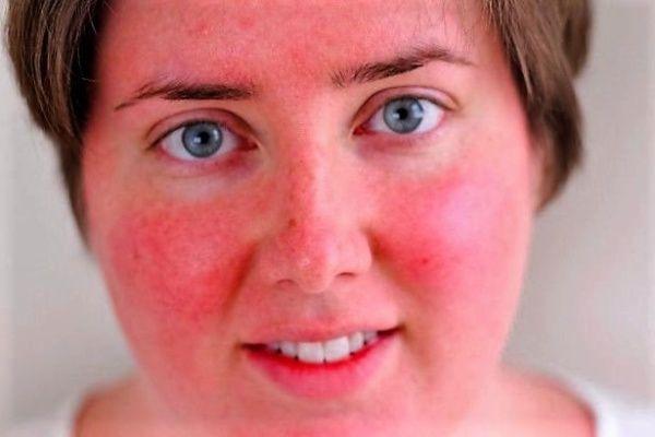 Почему с похмелья красное лицо