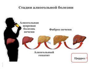 Симптомы и лечение алкогольного цирроза печени