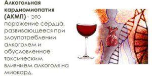 Если болит сердце после алкоголя что делать