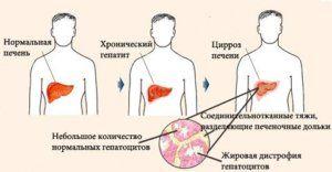 Можно ли вылечить цирроз печени: хирургические способы и новые методы терапии