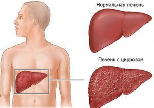 Сколько живут с таким заболеванием, как цирроз печени?