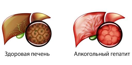 Алкогольный гепатит: 5 симптомов для контроля!